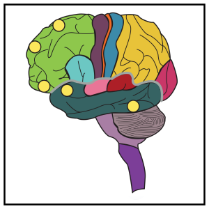 brainboxlateral-01